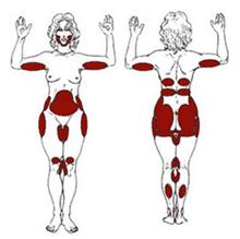 ft_liposuction02