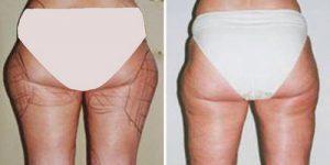 ft_liposuction08
