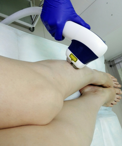 ноги 2